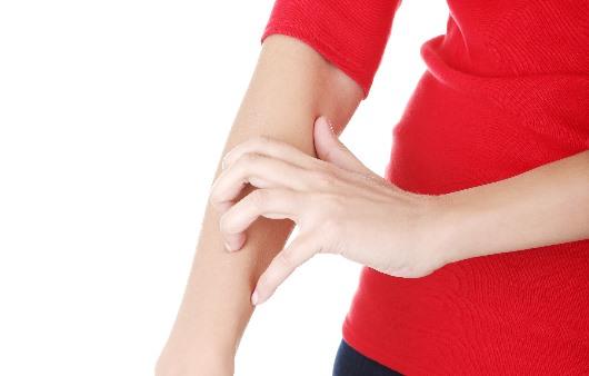 팔을 긁는 여성