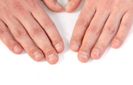 상태가 좋지 않은 손톱