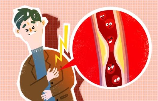 급사·협심증 부르는 '관상동맥질환' 피하려면?