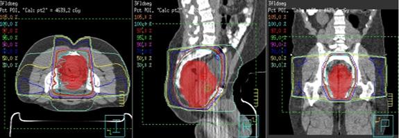 직장암 방사선치료범위 (자료
