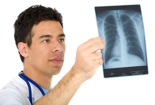 국내 사망률 1위 폐암, 방사선 치료의 방법과 효과는?