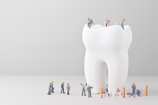 치아 크라운 치료, 나에게 맞는 종류와 관리법은?