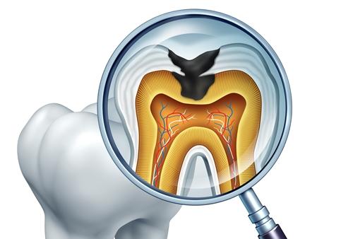 신경치료 한 치아는 반드시 씌워야 하나요?