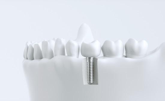 뼈와 같은 성분의 인공 뼈 재료 개발, 임플란트로 실용화