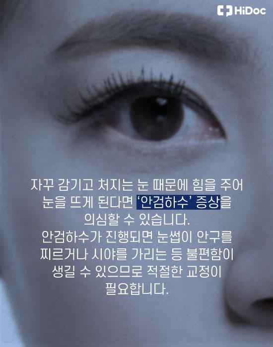 감기고 처지는 눈, '안검하수' 눈매 교정법은?