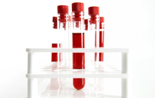 피 한 방울로 20분 만에 B형, C형 간염 진단한다