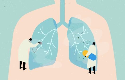 수술 부위 통증·호흡곤란 등 폐암 치료법에 따른 합병증