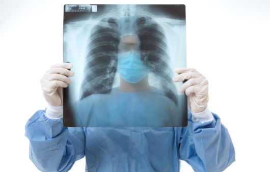 폐가 굳는다는 폐 섬유화증, 증상 및 치료법은?
