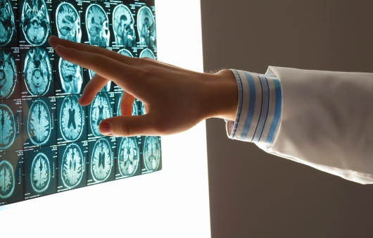 MRI 판독