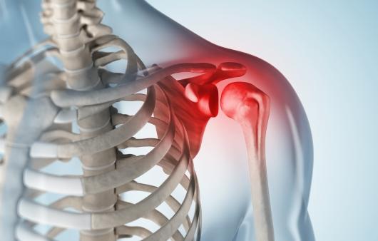 [1분 Q&A] 어깨 골종양, 운동으로 인한 충격으로 발생?