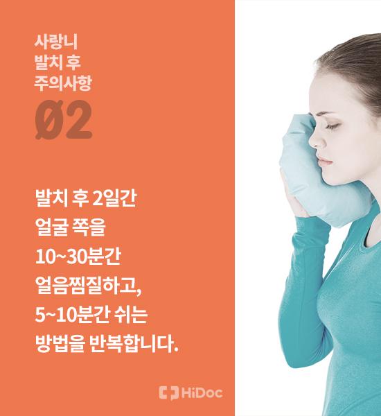 통증, 붓기 줄이려면? 사랑니 발치 후 주의사항 10