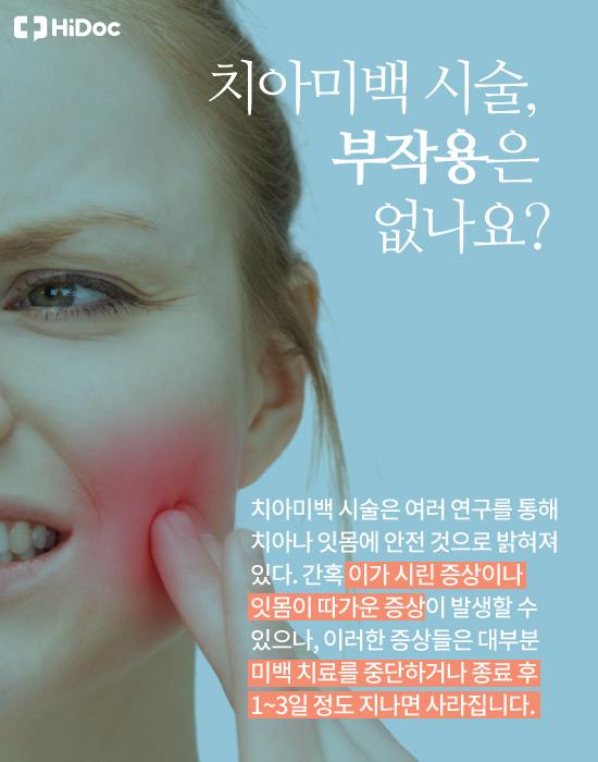 이가 더 하얘질까? '치아미백' 궁금증 5가지