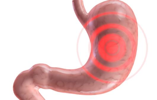 [1분 Q&A] 명치 아픈 '위염·담적병' 위장질환에 좋은 음식은?