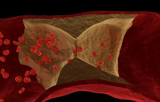 혈액 속 지방이 부르는 이상지질혈증의 진단법