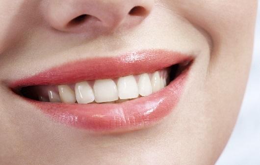 치아가 가지런한 여성