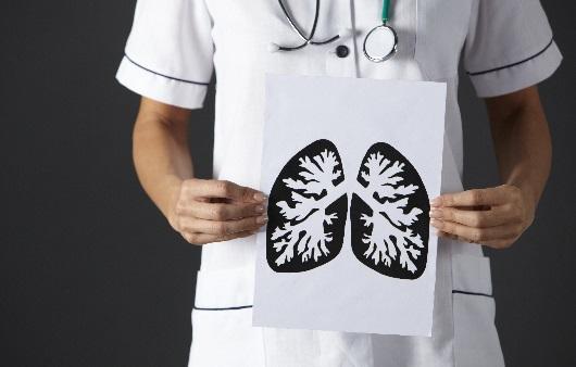 폐 그림을 들고 있는 의사