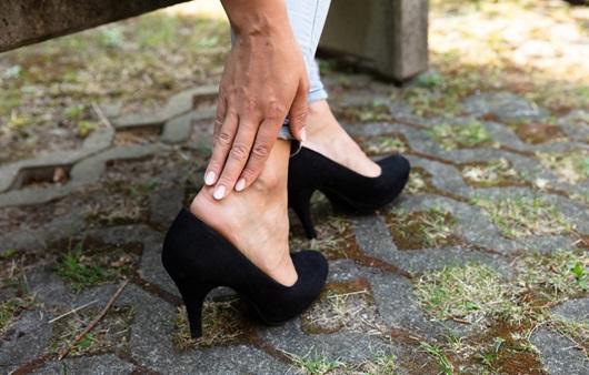 발목 염좌