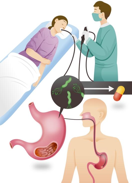 위내시경 검사와 헬리코박터균