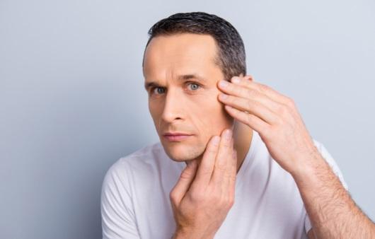 얼굴에 뭐가 난다면, 피지선 증식증일 수 있다?