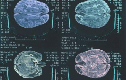 세계 파킨슨병의 날, 파킨슨병의 원인과 치료법은?