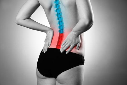 허리통증을 호소하는 여성