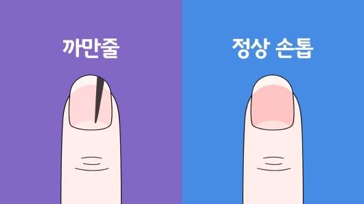 검은색 세로줄이 있는 손톱과 정상 손톱 모양