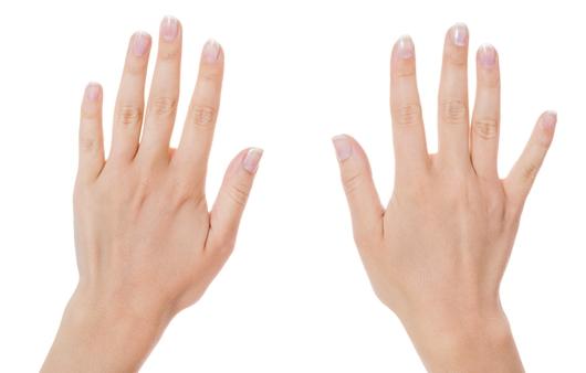 손톱에 검은색 세로줄이 생긴 이유 6가지