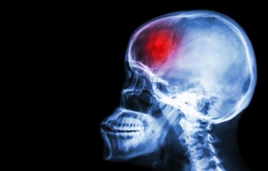 뇌혈관질환, 뇌졸중을 막아보자