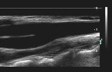 경동맥 초음파 검사 화면