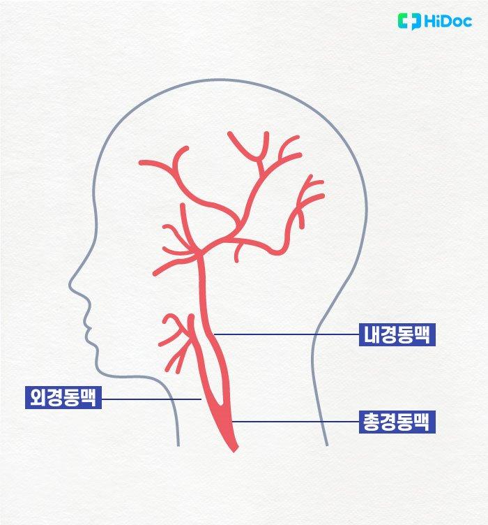 총경동맥과 내경동맥, 외경동맥