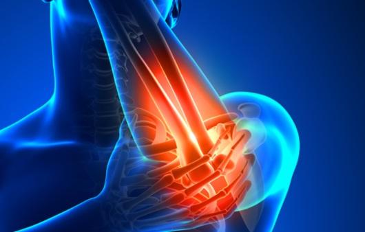 팔꿈치 통증
