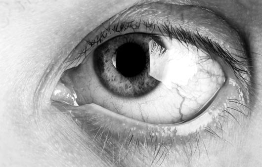 건조한 눈, 들기름(오메가-3)으로 기름칠하세요
