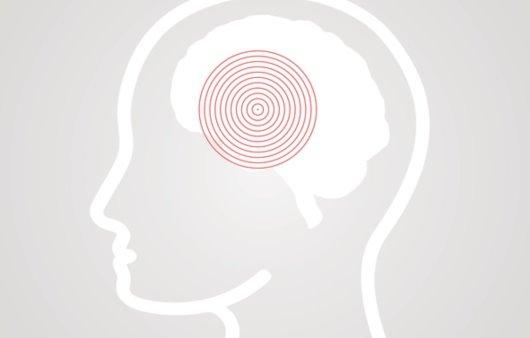 뇌경색, 왜 부정맥이 위험인자일까?