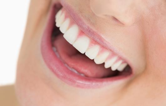 활짝 웃을 수 있는 치아교정, 인비절라인 투명교정