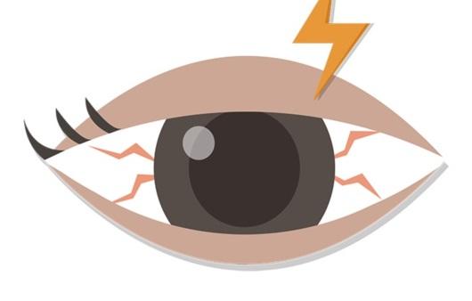 눈 안에 뭐가 생겼다면, 결막모반일까? 검열반일까?