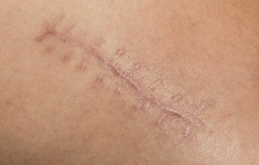 더 깨끗한 피부를 위한 피부재생치료