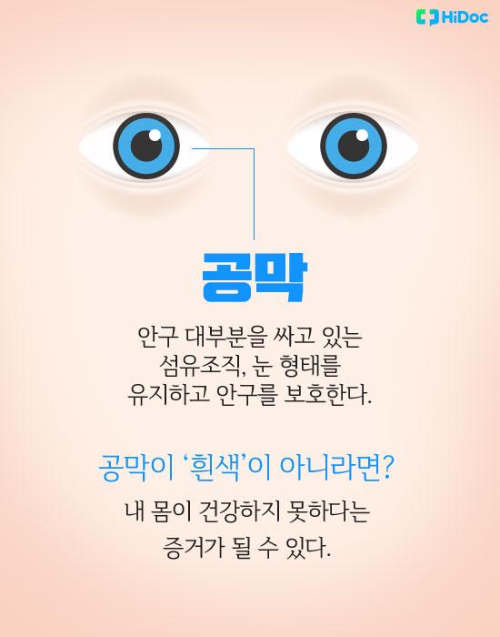 눈색깔로보는건강_공막