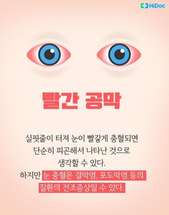 눈색깔로보는건강_빨간