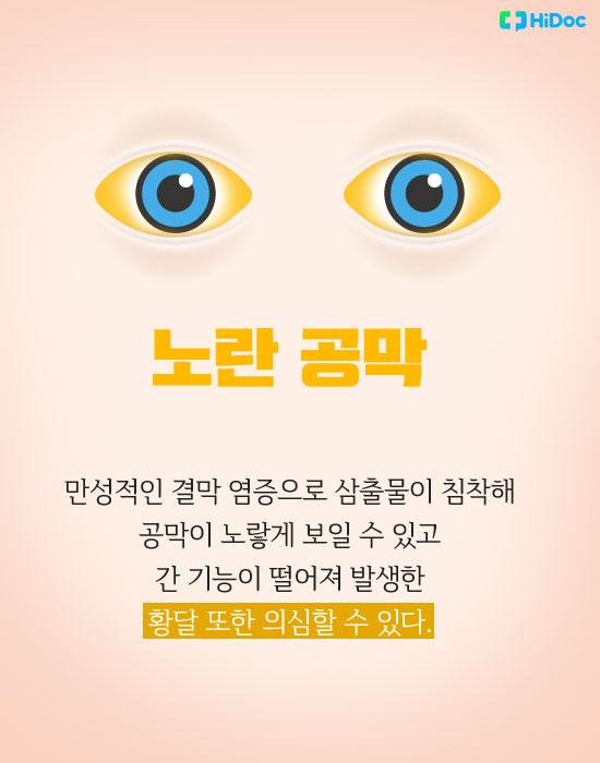 눈색깔로보는건강_노랑