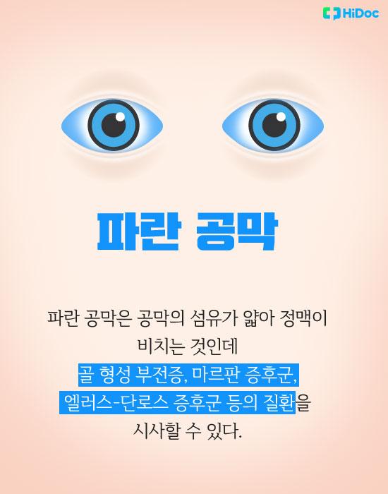 눈색깔로보는건강_파랑