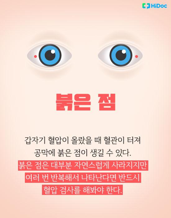눈색깔로보는건강_붉은점