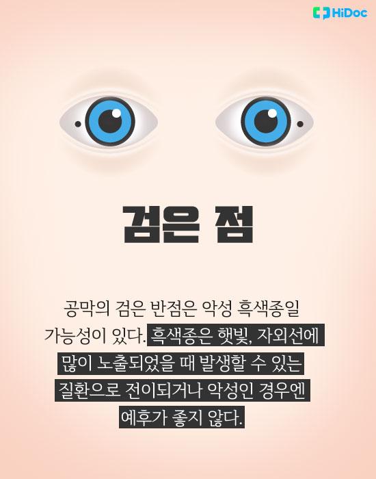 눈색깔로보는건강_검정